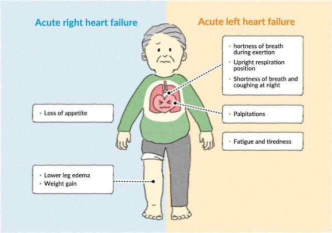 acute heart failure diagram